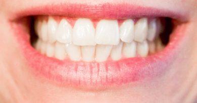 Kostenübernahme von Zahnbehandlungen