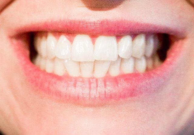 kostenuebernahme bei Zahnbehandlungen